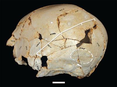 Cráneo reconstruido de un Homo Pleistoceno Medio