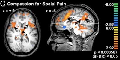 Imágenes de resonancia magnética nuclear que muestran las regiones cerebrales activadas por la compasión. Créditos: PNAS.