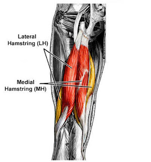 pulled hamstring treatment