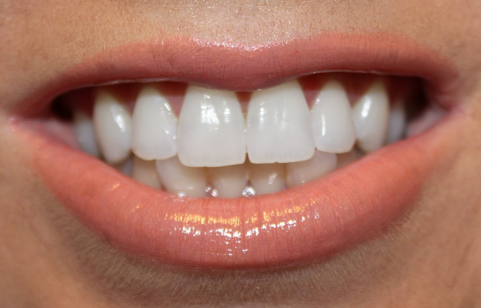 Crest 3d whitestrips