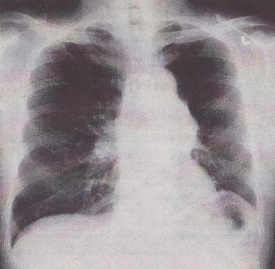 X-ray dada pesakit COPD.