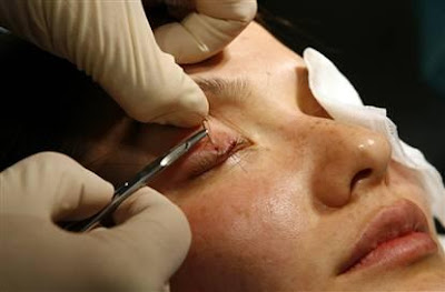 Eye Bag Removal Surgery (Blepharoplasty)