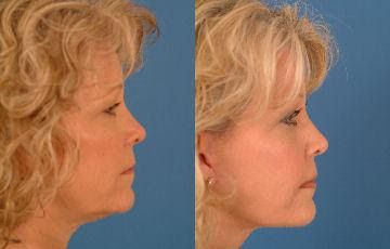 Facelift (Rhytidectomy) before and after