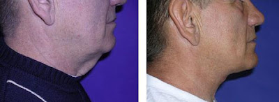 facelift treatments before and after