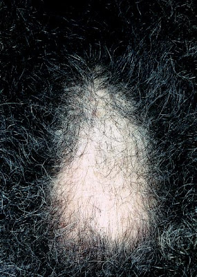 Hair Loss in Female