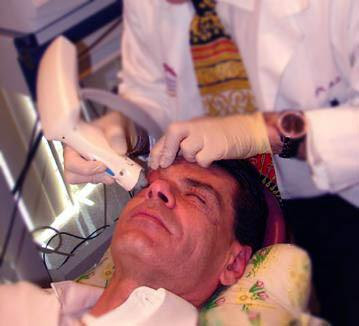 Thermage Procedure