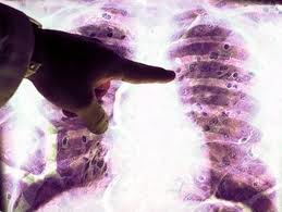 Asbestos Fibers In Lungs : Asbestos lung cancer what are the types of asbestos related lung