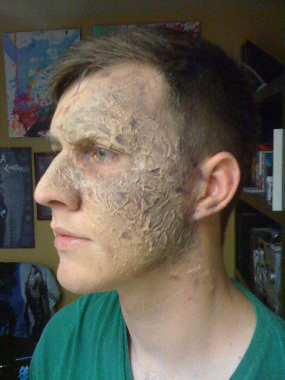 burn scar facial