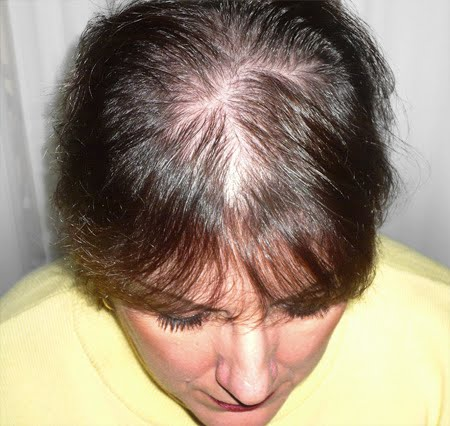 Alopecia Androgenetic on Healthy And Beauty Tips  Alopecia Treatments   Alopecia Remedies
