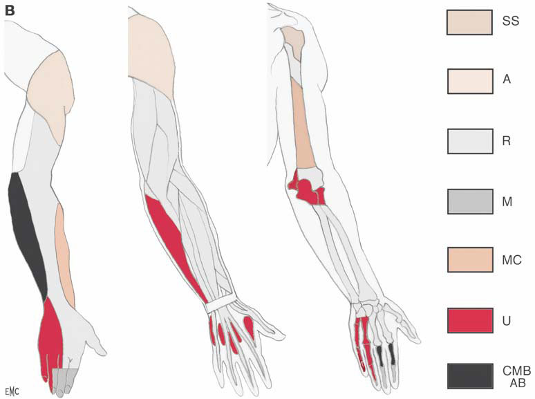 Myotomes And Dermatomes Of The Lower Limb Picture Images - Frompo