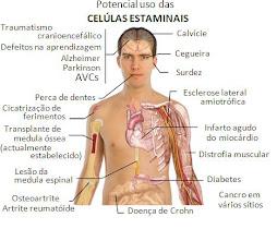 Doenças possiveis de tratar com células estaminais