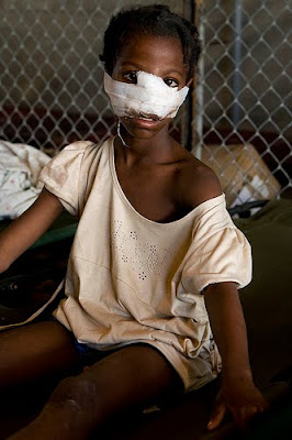 haiti earthquake survivor