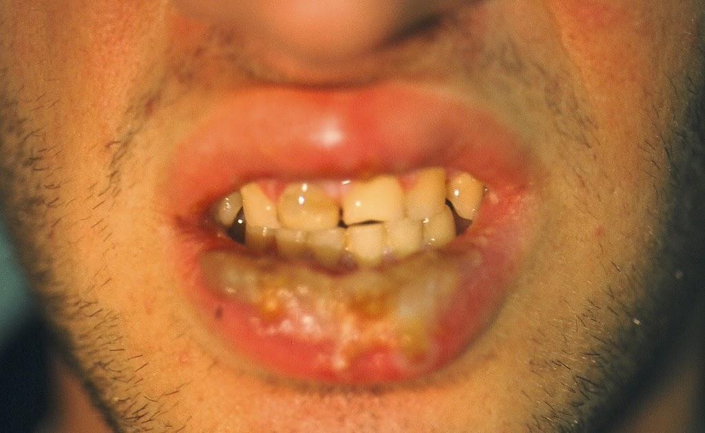 Tos, Boca seca - causas y diagnóstico -
