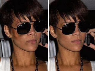 Rihanna Assault Photo