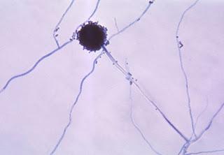 aspergillus fungus