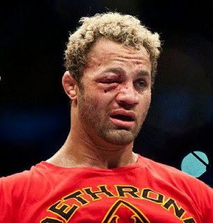 Koscheck%252C+Josh+%2528swollen+right+eye+courtesy+of+GSP%2527s+left+jab+at+UFC+124+noncloseup%2529.jpg