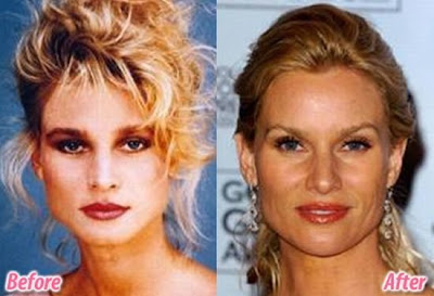 Celebrity before and after funny family pictures