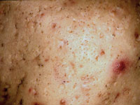 iontophoresis steroid treatment side effects