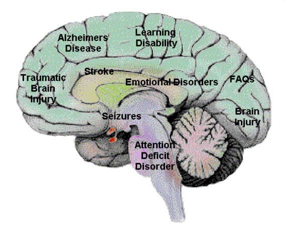 comunicacion con trastorno bipolar