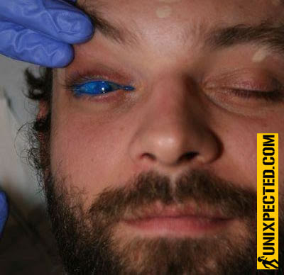"has been the first person to receive an experimental ""eyeball tattoo""."
