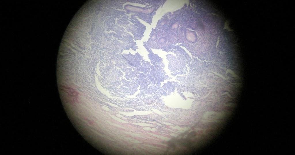 Histology Slides Database: appendix histology slides Taenia Coli Histology