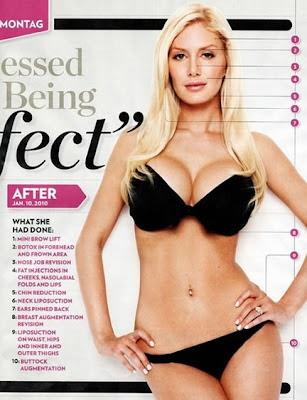 heidi montag plastic surgery. Heidi Montag Plastic Barbie