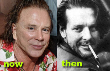 Before and after - Mickey Rourke (image hosted by http://www.plasticcelebritysurgery.com)
