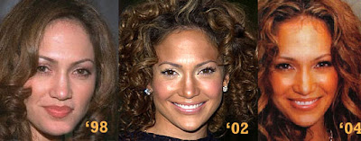 Jennifer Lopez    on Jennifer Lopez Nose Job   Cosmetic Plastic Surgery