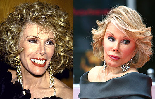 Joan Rivers before and after plastic surgery photos (image hosted by http://www.plasticcelebritysurgery.com)