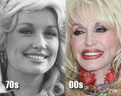 Plastic surgery may have caused Dolly Parton to look like merely a shell of ...