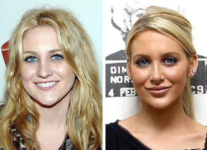 heidi montag before and after plastic surgery pictures. Stephanie Pratt efore and