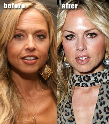 Rachel Zoe before and after plastic surgery, brow lift and botox?