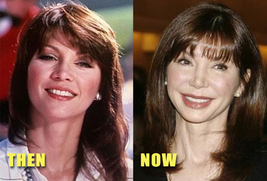 Victoria Principal before and after (image hosted by http://www.plasticcelebritysurgery.com)
