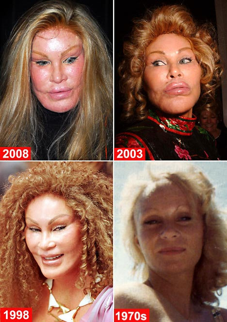 Jocelyn Wildenstein before and after photo