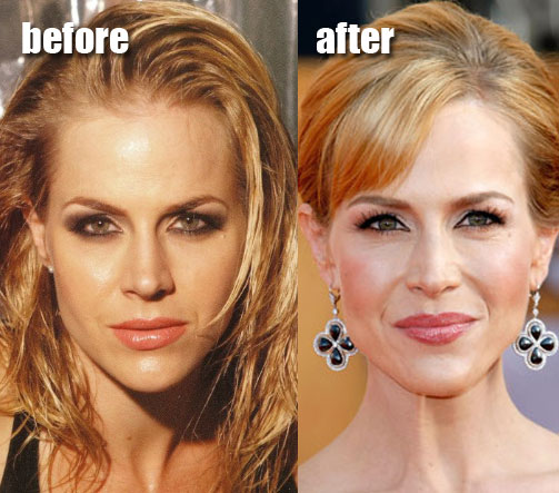 anna faris plastic surgery before after. Julie Benz efore and after