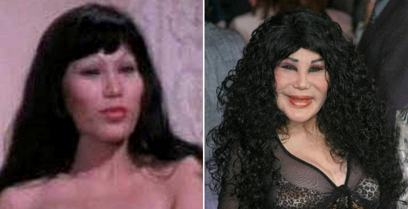 nicki minaj booty before plastic surgery. Lyn May efore and after