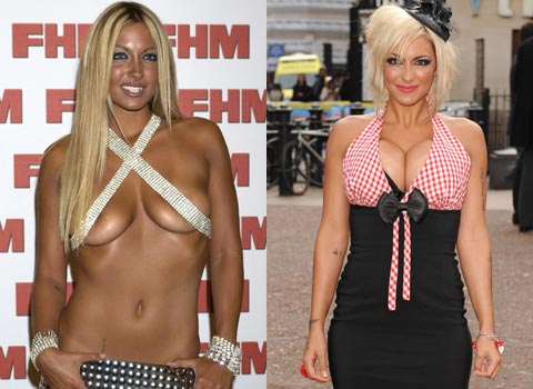 Jodie Marsh before and after breast implants plastic surgery.