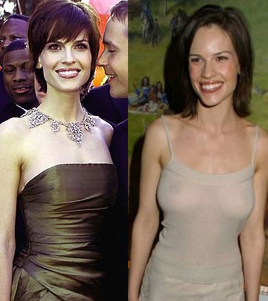 Hilary Swank Before After Breast Implants | Cosmetic Plastic Surgery
