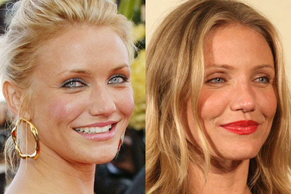 Cameron Diaz before and after nose job plastic surgery.