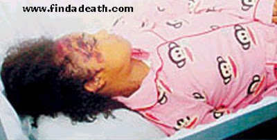 Left Eye Lopes autopsy pictures, Lisa Left Eye Lopes death pictures