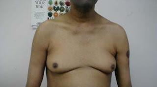 gynecomastia, liver, cirrhosis, moobs, man boobs
