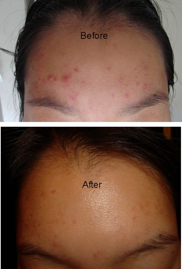 Pimple cream for sensitive skin, fading acne scars, treat