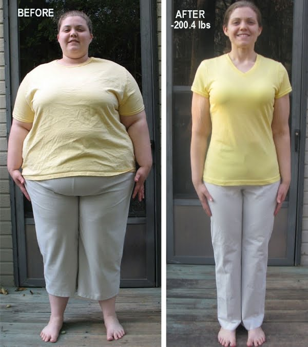 Living A Changed Life: Sheri's Inspiring Weight Loss