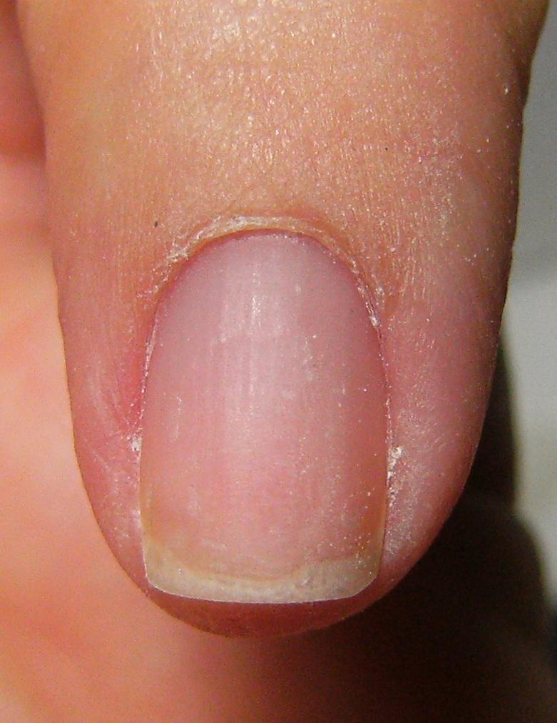 Fingernail disorders, fingernail changes, fingernail ...