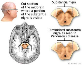 paper on alzheimer disease - Pay Us To Write Your Research Paper ...