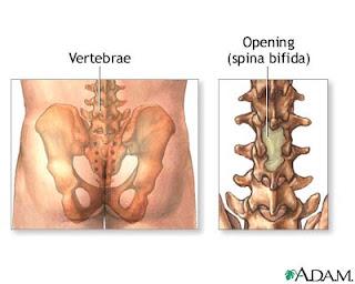 Espina Dorsal Bifida
