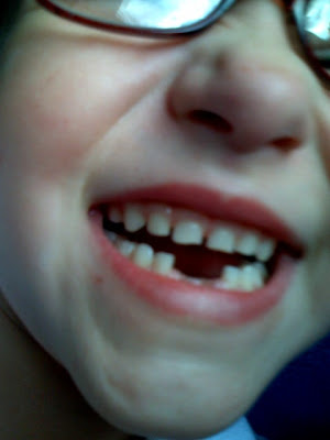 Six year-old Lucy, wearing big ol' glasses, extreme close-up on her enormous smile... missing two lower front teeth!!!