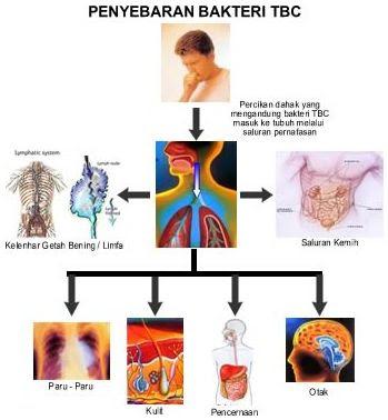 Tuberkolusis