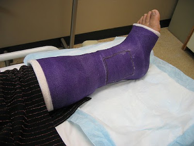 broken leg Dont Leave Home Without This   The Most Important Thing You MUST Get Before You Travel