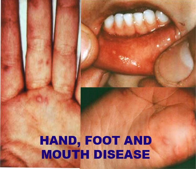 Apa itu Penyakit Tangan Kaki dan Mulut HFMD Dan Cara Menghadapinya